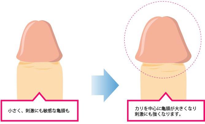 亀頭増大手術の詳細