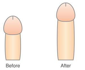 脂肪吸引式長茎手術のメリット・デメリット