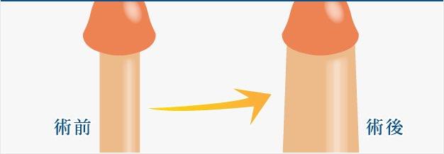 陰茎増大手術の詳細